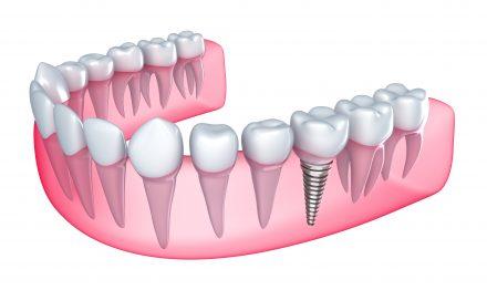 affordable dental implant diagram in austin tx