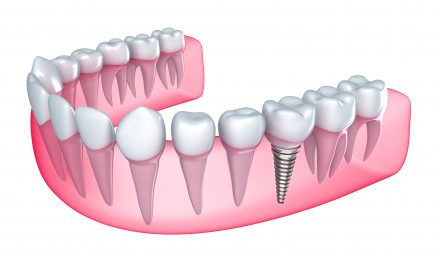 affordable dental implant diagram in austin tx